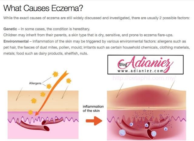 Skin Care : Cetaphil Gentle Skin Cleanser Pilihan Saya Untuk Nurin
