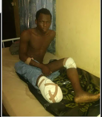 Photo: Troops Rescue Injured Boko Haram Terrorist Abandoned By His Colleagues