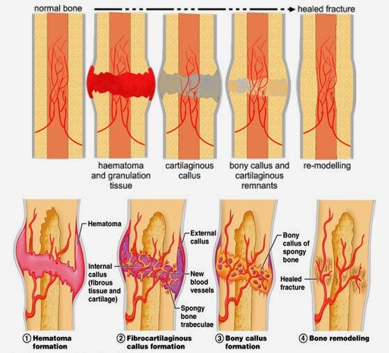 fase penyembuhan tulang