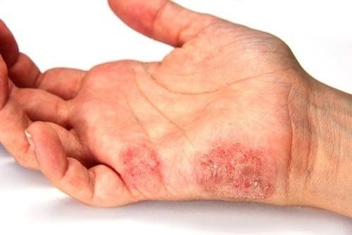 Un Remedios Casero para la Psoriasis