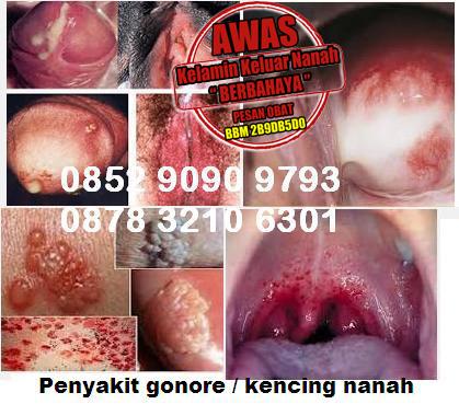 Obat Antibiotik Kelamin Keluar Nanah