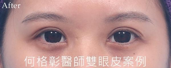 訂書針微開放式雙眼皮術後