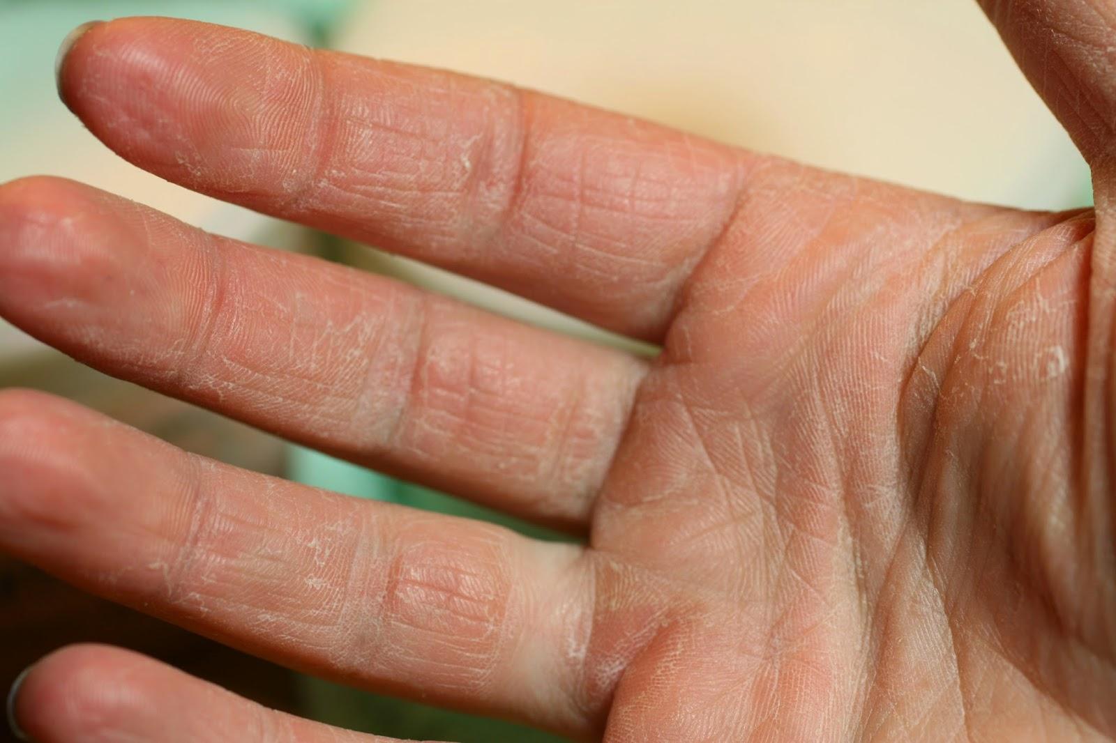 droge handen winter