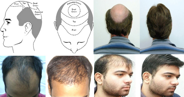 Hair Transplantation : Procedures, Types and Side Effects