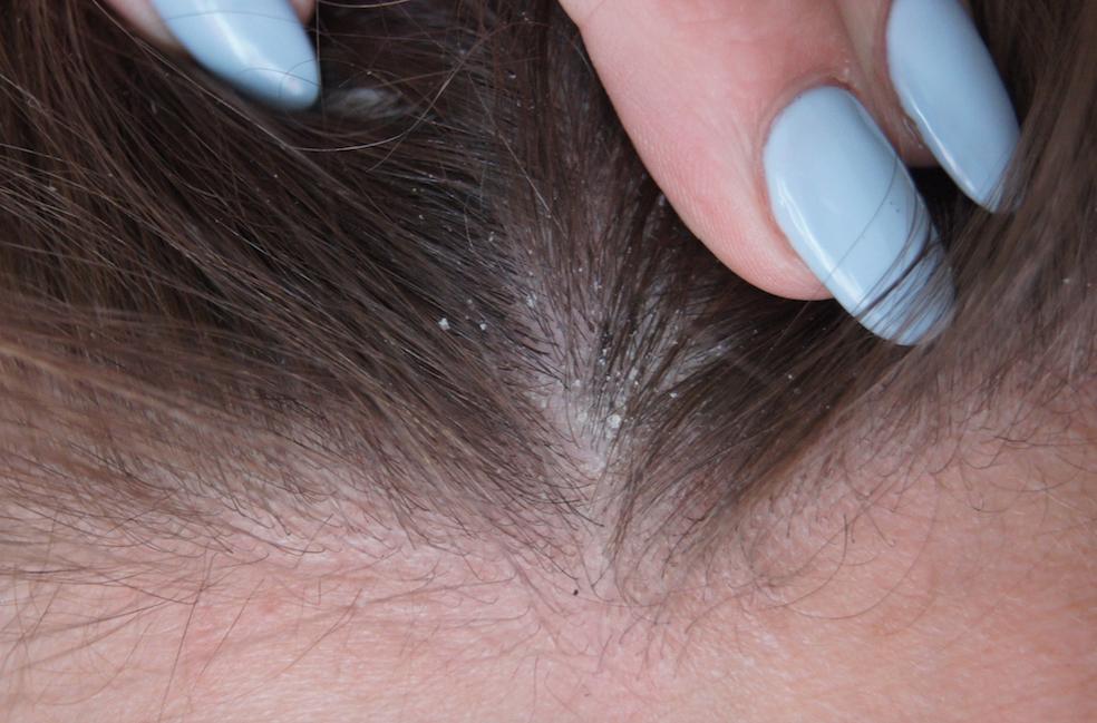 HAIR} Dandruff Woes- Head And Shoulders - Three B's Blog
