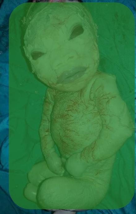 Celebrity baby birth defect