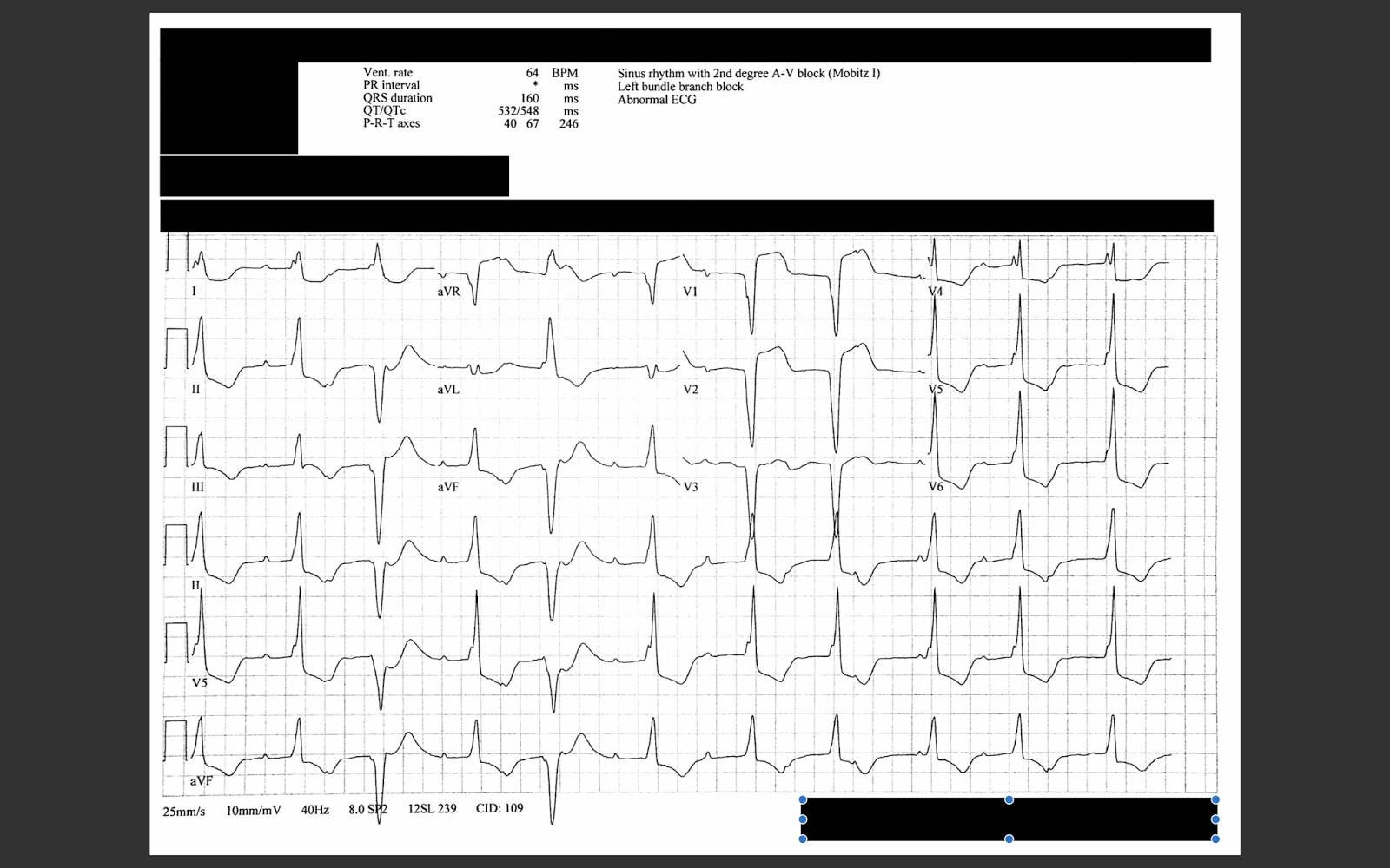 dr  smith u0026 39 s ecg blog