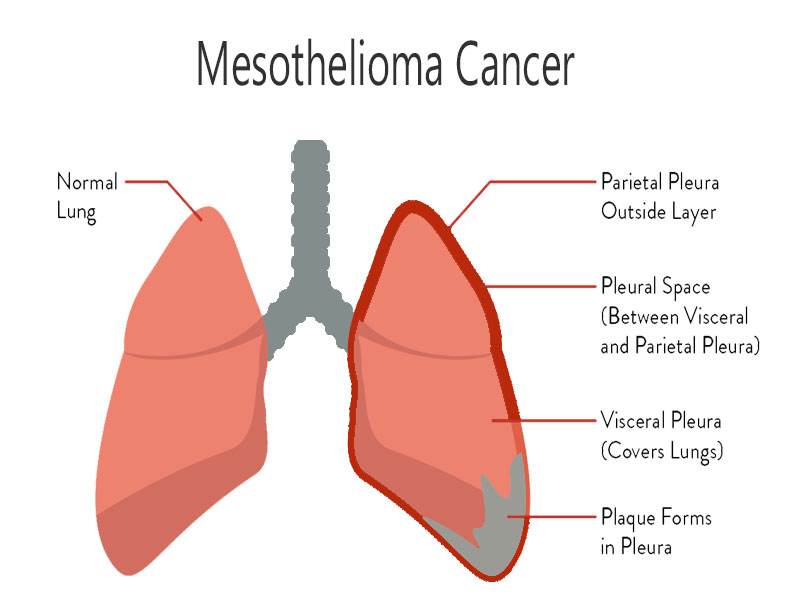 what is mesothelioma cancer how to cure mesothelioma a hub ofmesothelioma