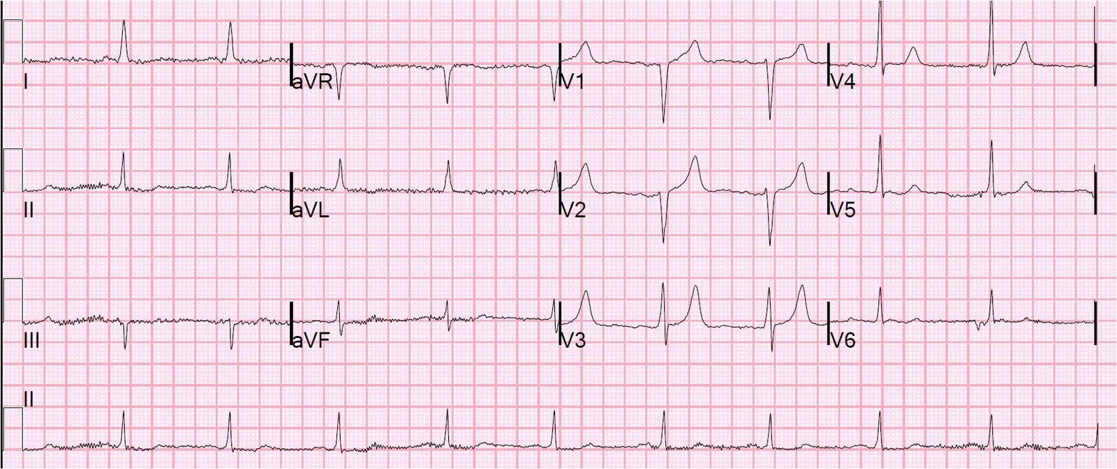 Dr. Smith's ECG Blog: ...