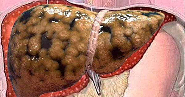 !Toma Nota Antes Que Lo Borren! Un Médico Muestra Cómo Sacar Toda La Grasa Del Hígado EN Unos Días