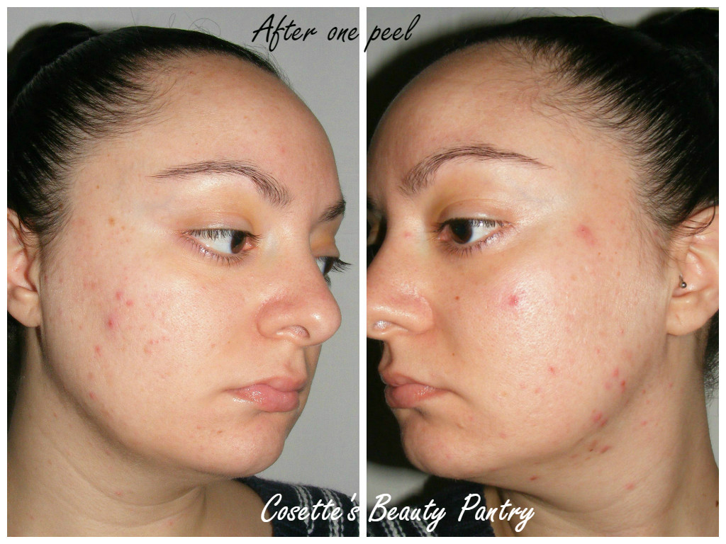 Facial peel reviews sorry, does