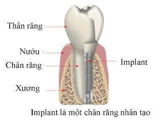 Địa chỉ làm răng implant tốt cho hiện tượng mất răng