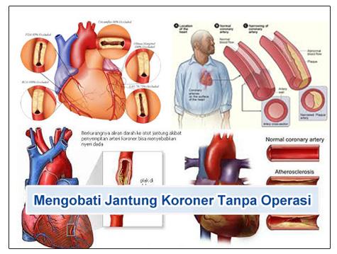 Mengobati Jantung Koroner Tanpa Operasi