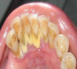 obat karang gigi, cara bersihkan plak gigi, karang gigi hitam, penyebab kalkulus gigi