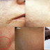 How to get rid of Large OPEN PORES permanently and Acne Scars Naturally At Home