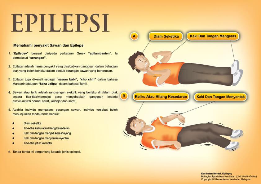 Sawan Dan Epilepsi.jpg