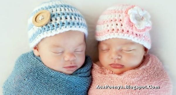 Bayi Kembar Unik