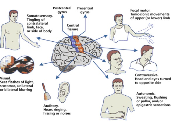 Doctor Man's Blog: 腦癇癥 ( Epilepsy)