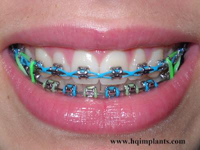 Porselen Protez diş telleri