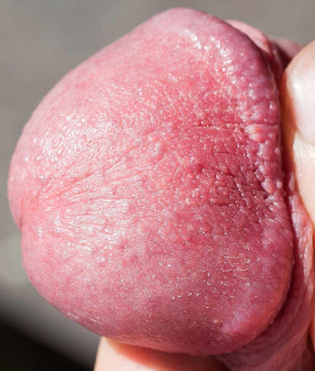 Genital Discoloration Pictures 60