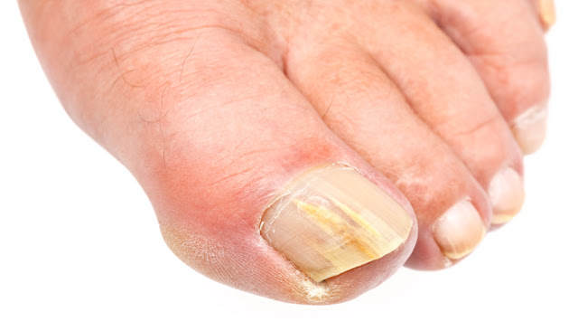 Nail Fungus Symptoms and Treatment