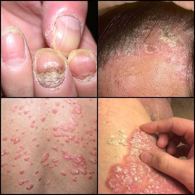 Obat Salep Penyakit Kulit Psoriasis Di Apotik Kimia Farma