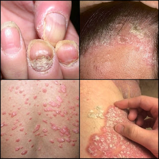 Obat Salep Penyakit Kulit Psoriasis Di Apotik