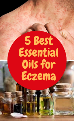 What Essential Oils Should You Use?