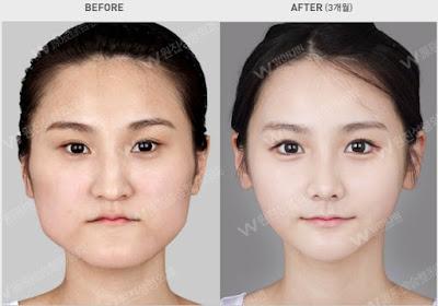 sebelum dan sesudah operasi dua rahang korea - v-line