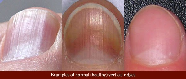 Did You Know What Your Fingernails Can Say About Your Health?