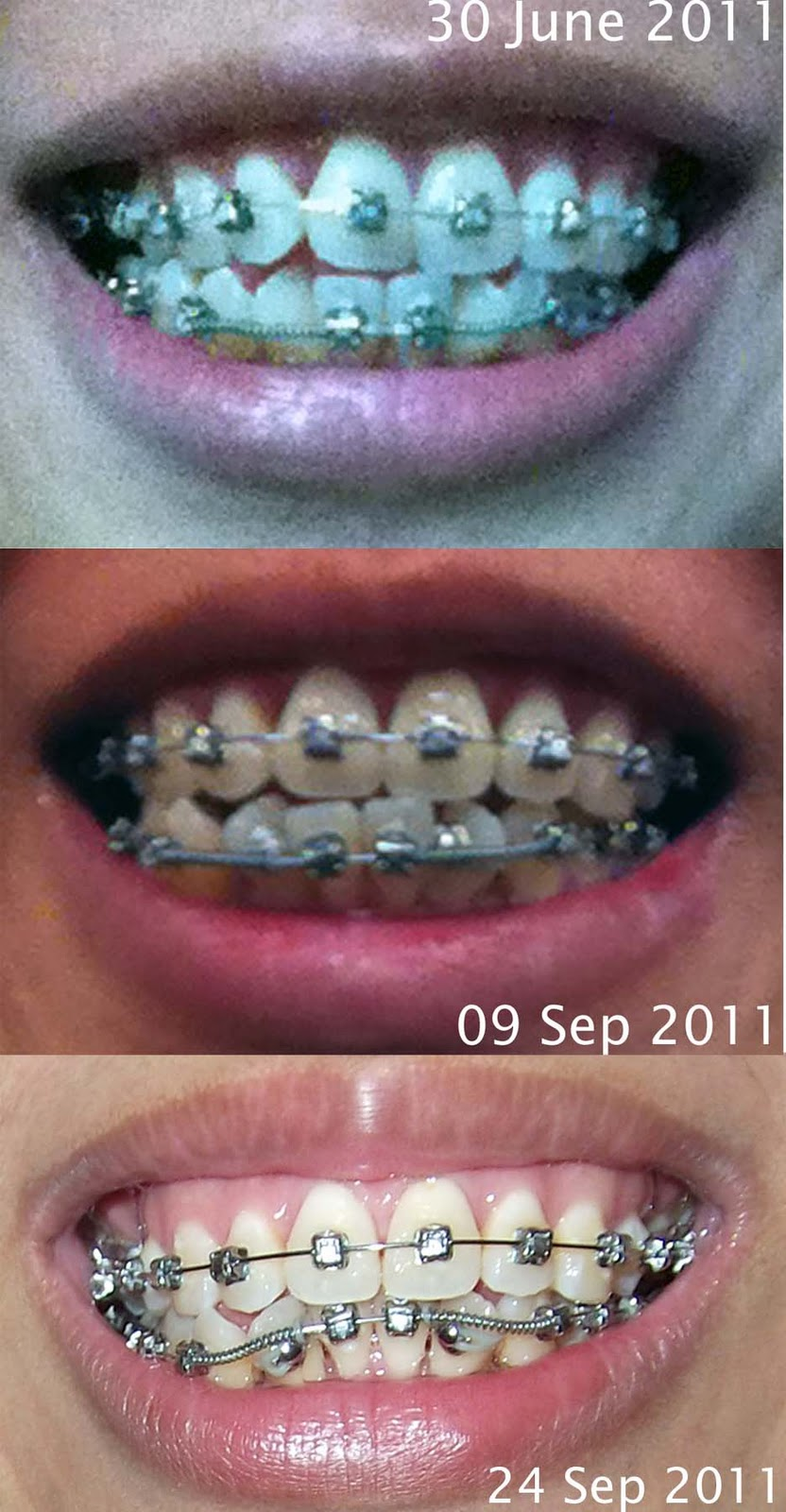 My Life's Inspirations!: Damon Braces Update