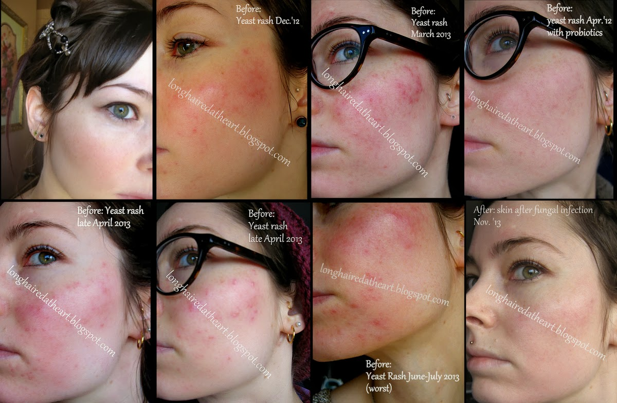 old spots on face how to get off