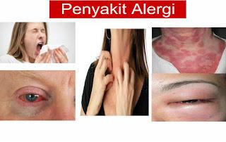 Pengobatan Tradisional Penyakit Alergi