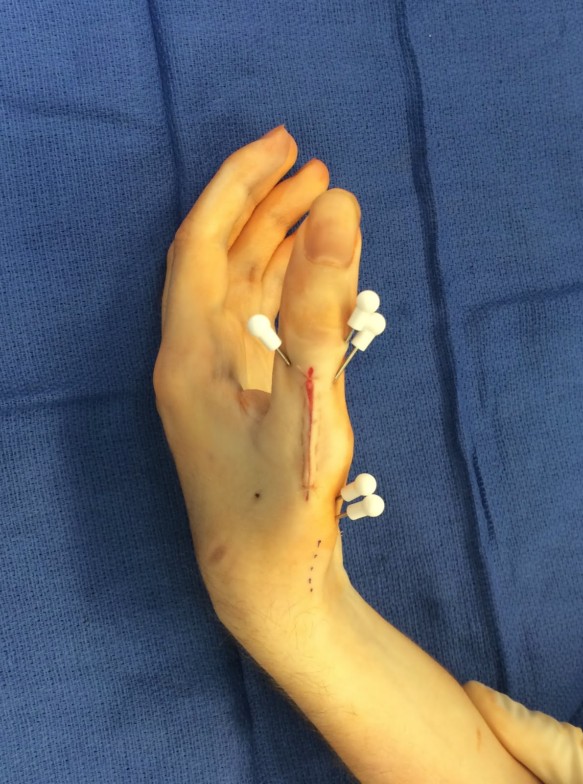 Congenital Hand And Arm Differences: Cerebral Palsy, Thumb Deformity