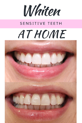 How I Whiten My Coffee Stained Sensitive Teeth At Home