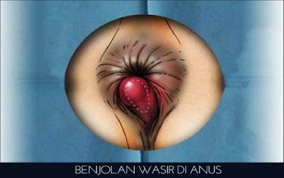 Benjolan Wasir