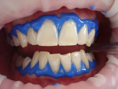 Tips dan Cara Memutihkan Gigi Menggunakan Kulit Pisang