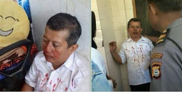 Innalillah, Guru SMK Makassar dipukul Orang Tua Setelah Menegur Siswa Hingga Berdarah