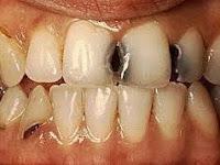 Penyebab Gigi Berlubang Pada Gigi Anda
