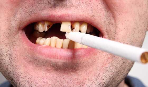 6 Cara Memutihkan Gigi Kuning Akibat Merokok Secara Alami Sehat Jep