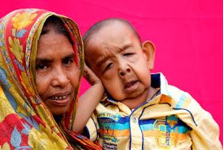 Four year old boy like elderly man in Bangladesh