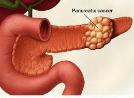 Stage 4 pancreatic disease, Know early manifestation of pancreatic malignant growth | Mesotheliomasandiego