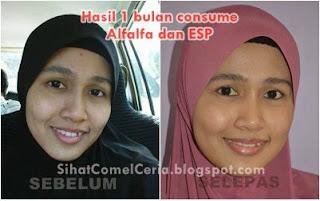 Testimoni ESP Shaklee untuk masalah kulit muka