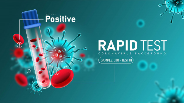 Coronavirus 2019- ncov rapid test with positive result Free Vector