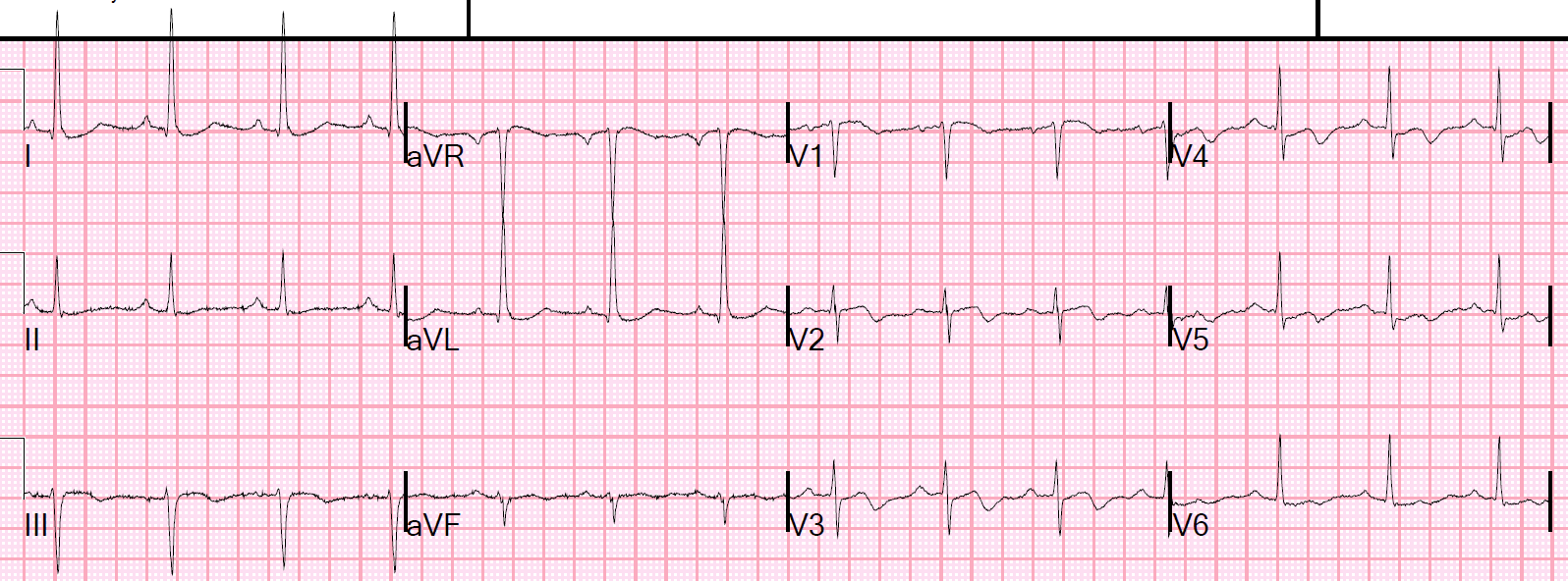 This demonstrates how Wellens' waves manifest the aftermath of a reperfused  STEMI