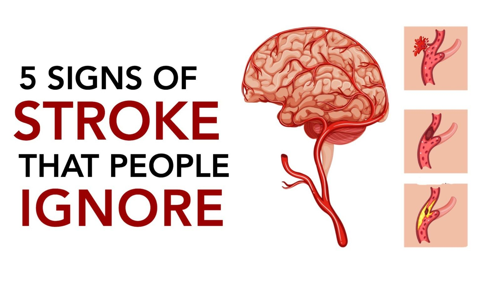 stroke, signs