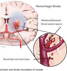 gambar pecah pembuluh darah