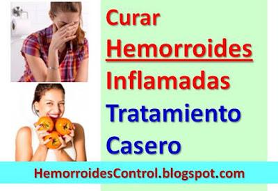 cura-natural-para-hemorroides-externas-inflamadas-tratamiento-natural