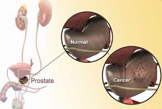 Kanker Prostat Stadium Lanjut Dapat Hidup Berapa Lama?