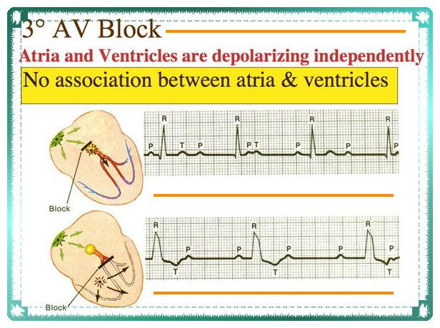 AV block and Its Functionality